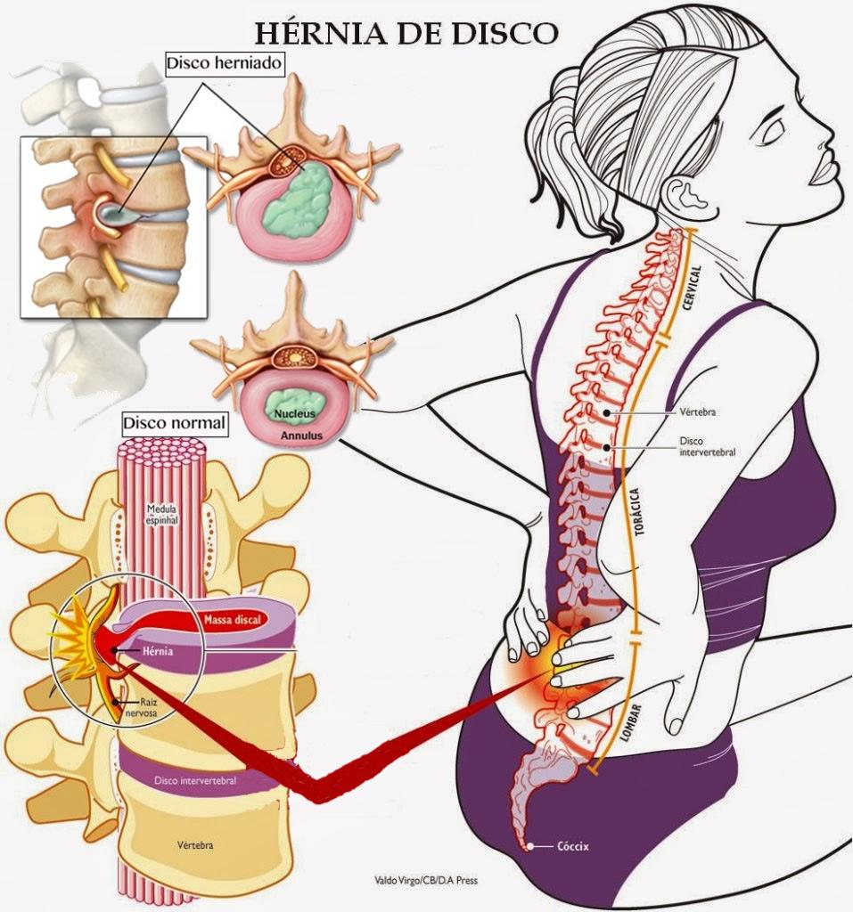 Los dolores pulsativos en el lado izquierdo detrás en el campo de los riñones