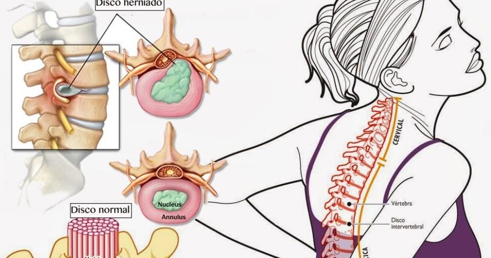 Vertebrogennaya torakalgiya del departamento de pecho de la columna vertebral