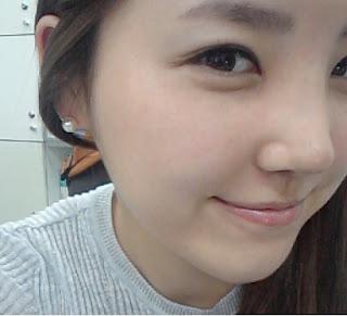 foto sebelum dan sesudah operasi plastik hidung di Wonjin-4