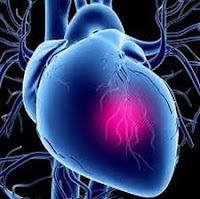 jenis penyakit jantung, macam penyakit jantung, Blog Keperawatan
