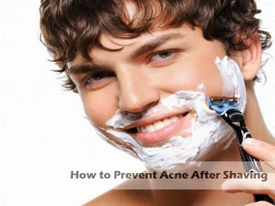 how to prevent acne after shaving