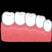 セラミックの歯のイラスト(歯の治療)