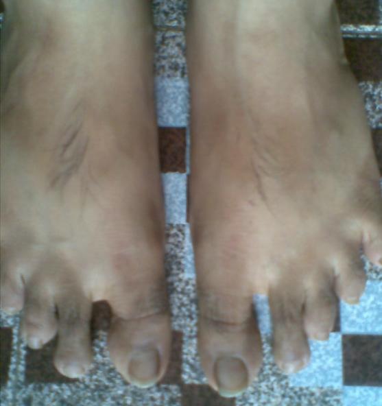 waxing's toe hair beauty