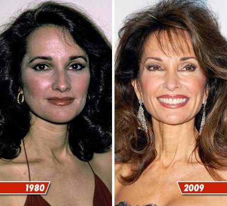 Celebrity Boob Jobs Susan Lucci Plastic Surgery Before