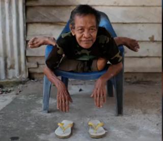 Mbah Bejan, Berbadan 'Karet' dari Indonesia Hebohkan Dunia