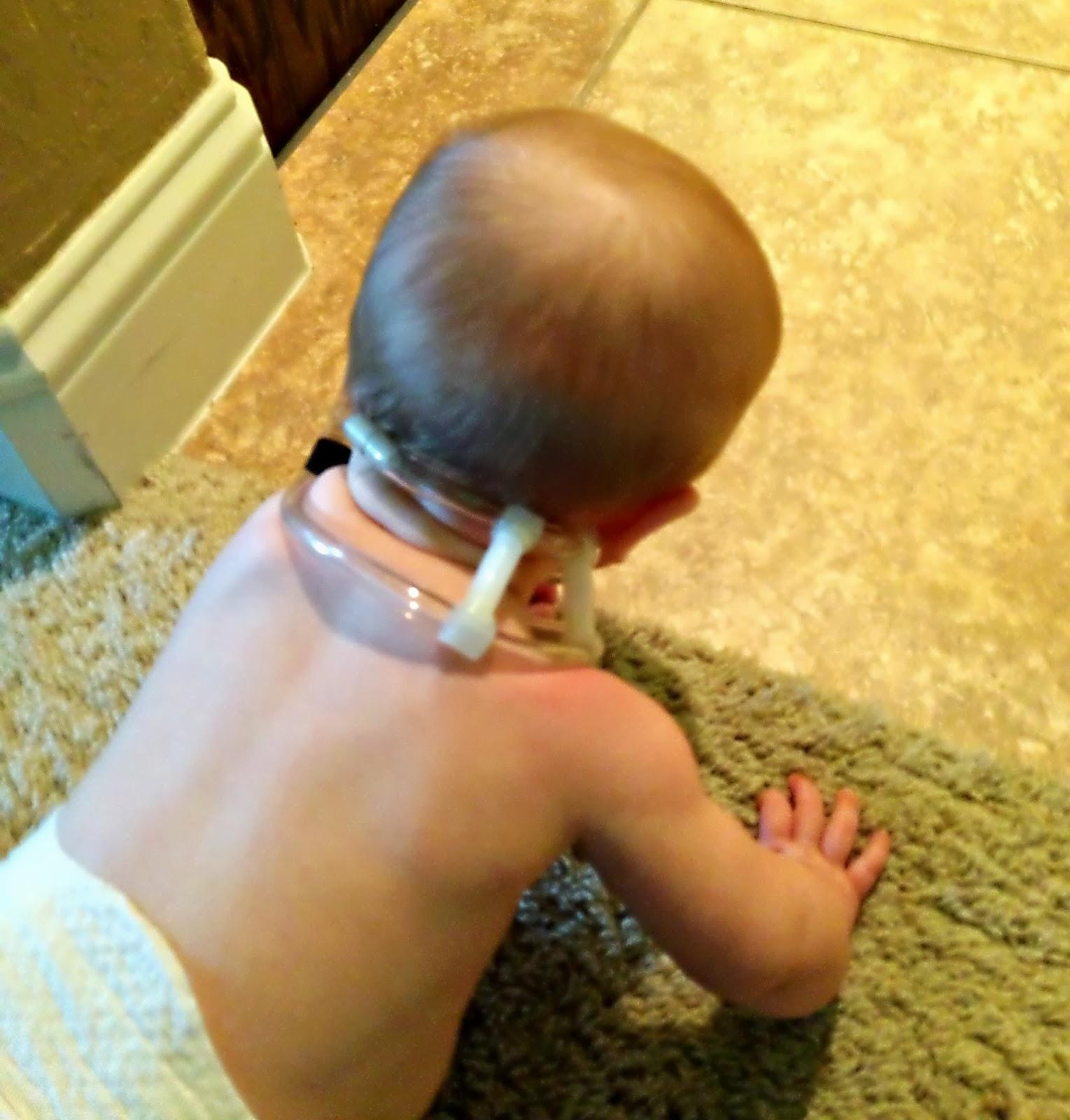 Кривошея у трехмесячного ребенка фото
