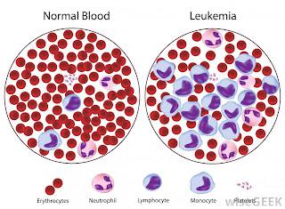 leukimia contoh penyakit sistem peredaran darah