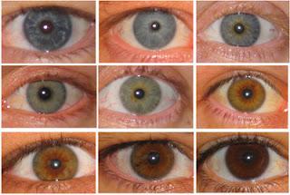 لون عيونك قد يكشف أمراضك الجلدية