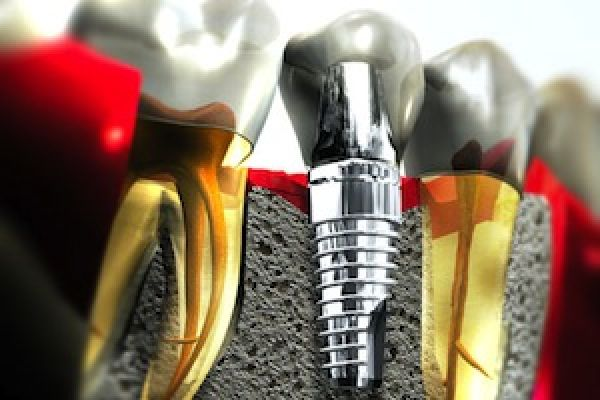root canal, implant, tooth replacement, dentistry, options