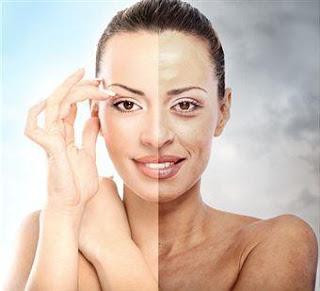Cara menghilangkan kulit belang