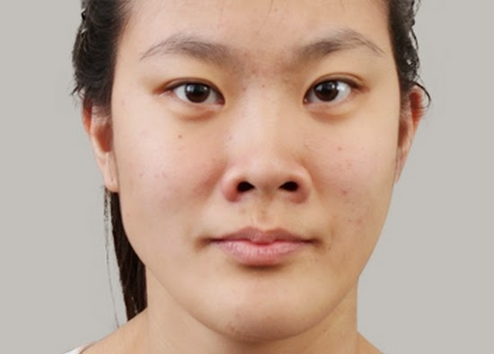 Operasi plastik hidung Korea untuk lubang hidung besar