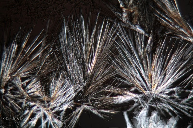 Cholesterol crystals under a microscope and in polarized light.