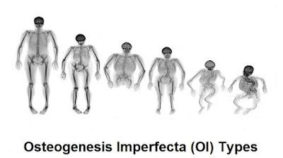 Osteogenesis Imperfecta (OI Disease): Types, Symptoms, Diagnosis And Treatment