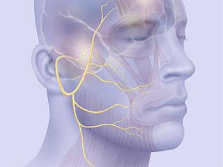 Exercícios de fonoaudiologia para Paralisia Facial