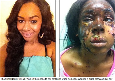 ... Girl Attacked With Acid By Person Dressed As A Muslim Woman In London