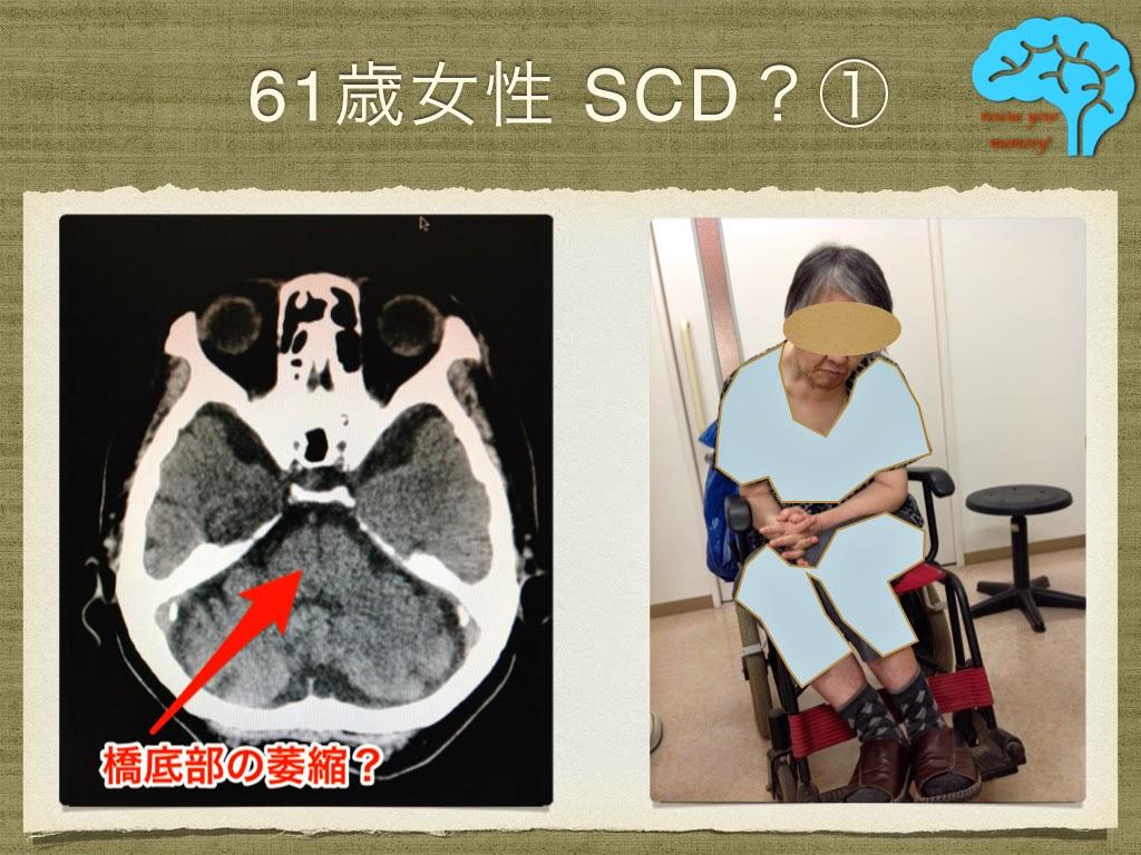 脊髄小脳変性症 家族歴あり 前傾姿勢