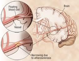 transient ischemic attack tia diagnosis