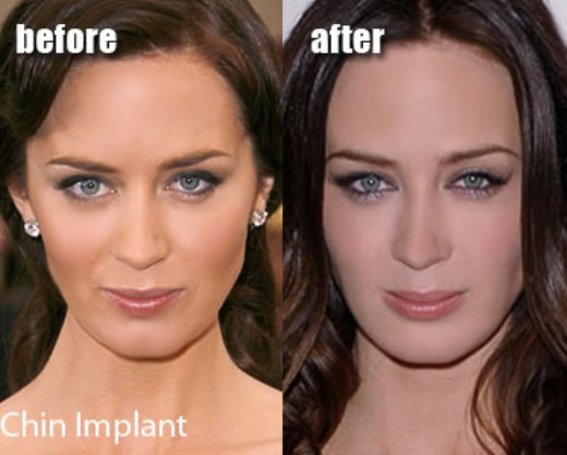 Emily Blunt Plastic Surgery Before and After Chin Implants ...