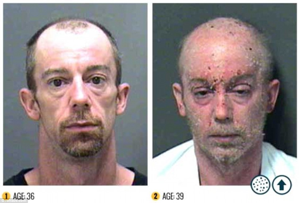 Meth Bugs Under Skin http://www.laughingchakra.com/2012/12/the-horrifying-effects-of-meth.html