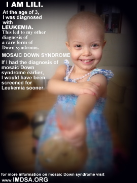 imdsa posted this photo of lili to help spread awareness about the importance of this diagnosis please visit their facebook page and help share this photo