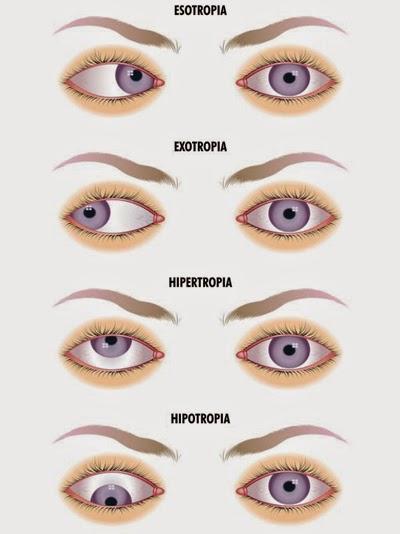 A máscara da pele em volta de olhos como pôr