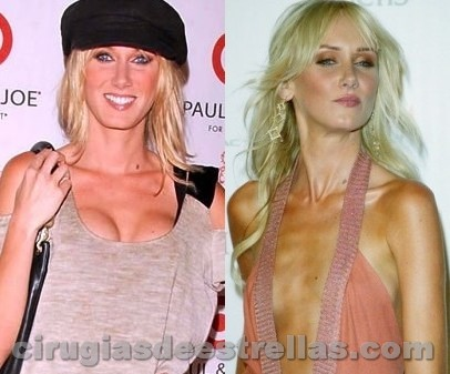 Kimberly Stewart cirugía