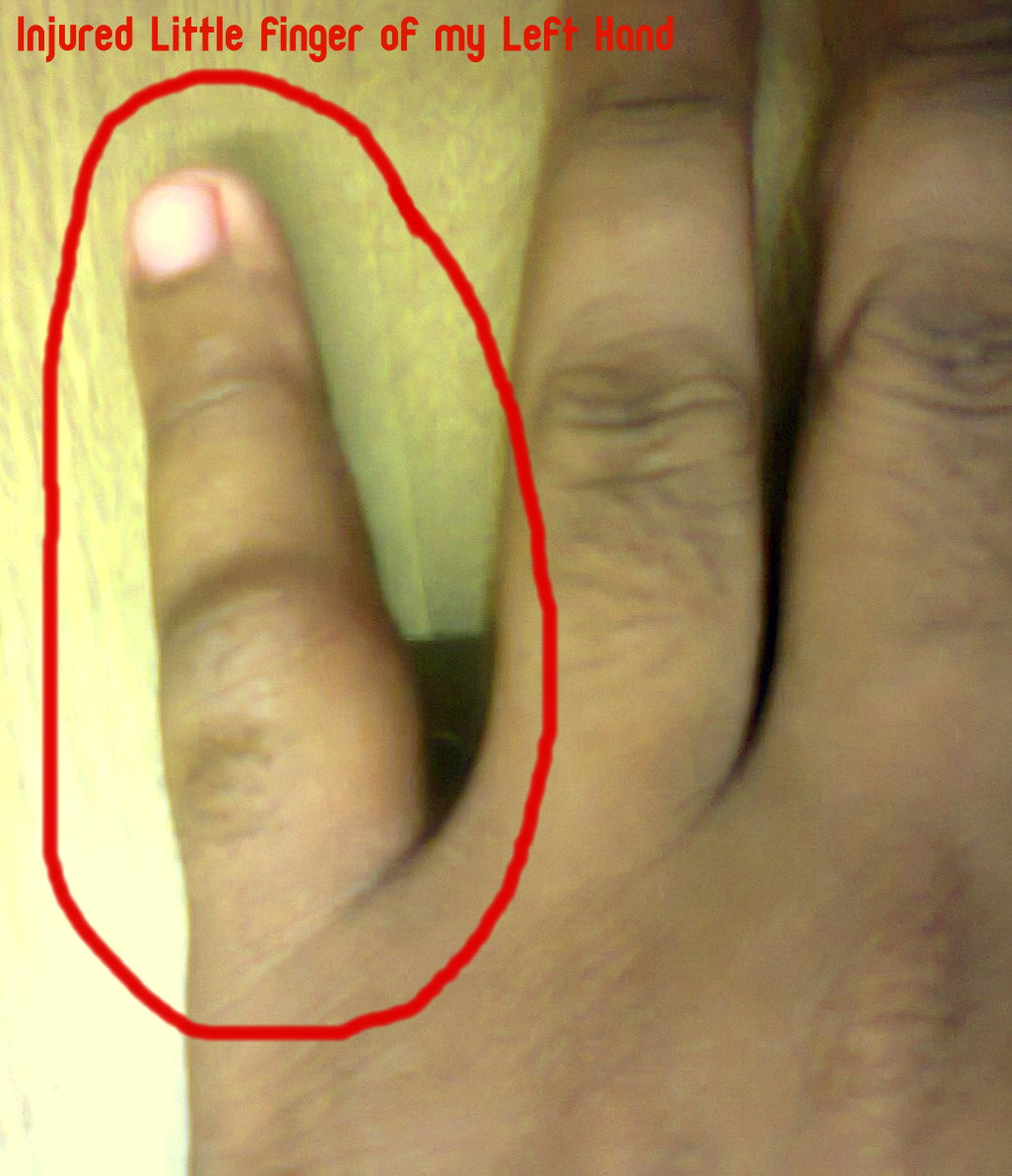 Why the little finger of the left hand goes numb What to do if the hand goes numb 76