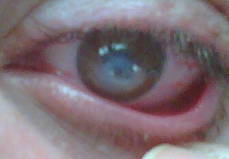 Corneal Hydrops The Eyes of a Q...