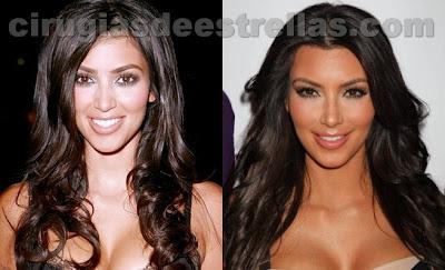 kim kardashian antes y despues