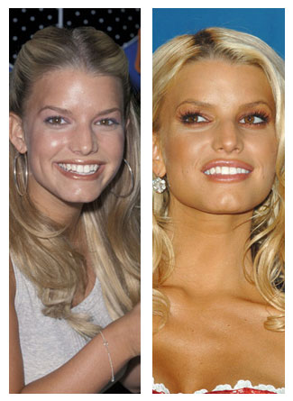 Did jessica simpson have breast implants