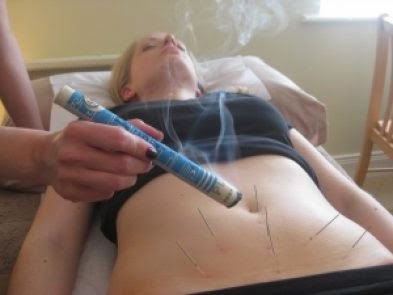 Acupuncture for Fertility Treatment