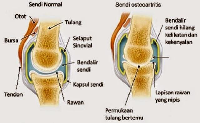 sakit lutut, pengedar shaklee penang, set kurus shaklee, set kesuburan, set hamil shaklee, kalsium