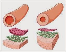 hipertensi atau tekanan darah tinggi