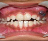 Dental Cyst Removal Surgery for Oral Health