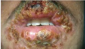 Penyakit Herpes Di Mulut