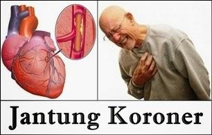 Cara Pengobatan Jantung Koroner Tanpa Operasi