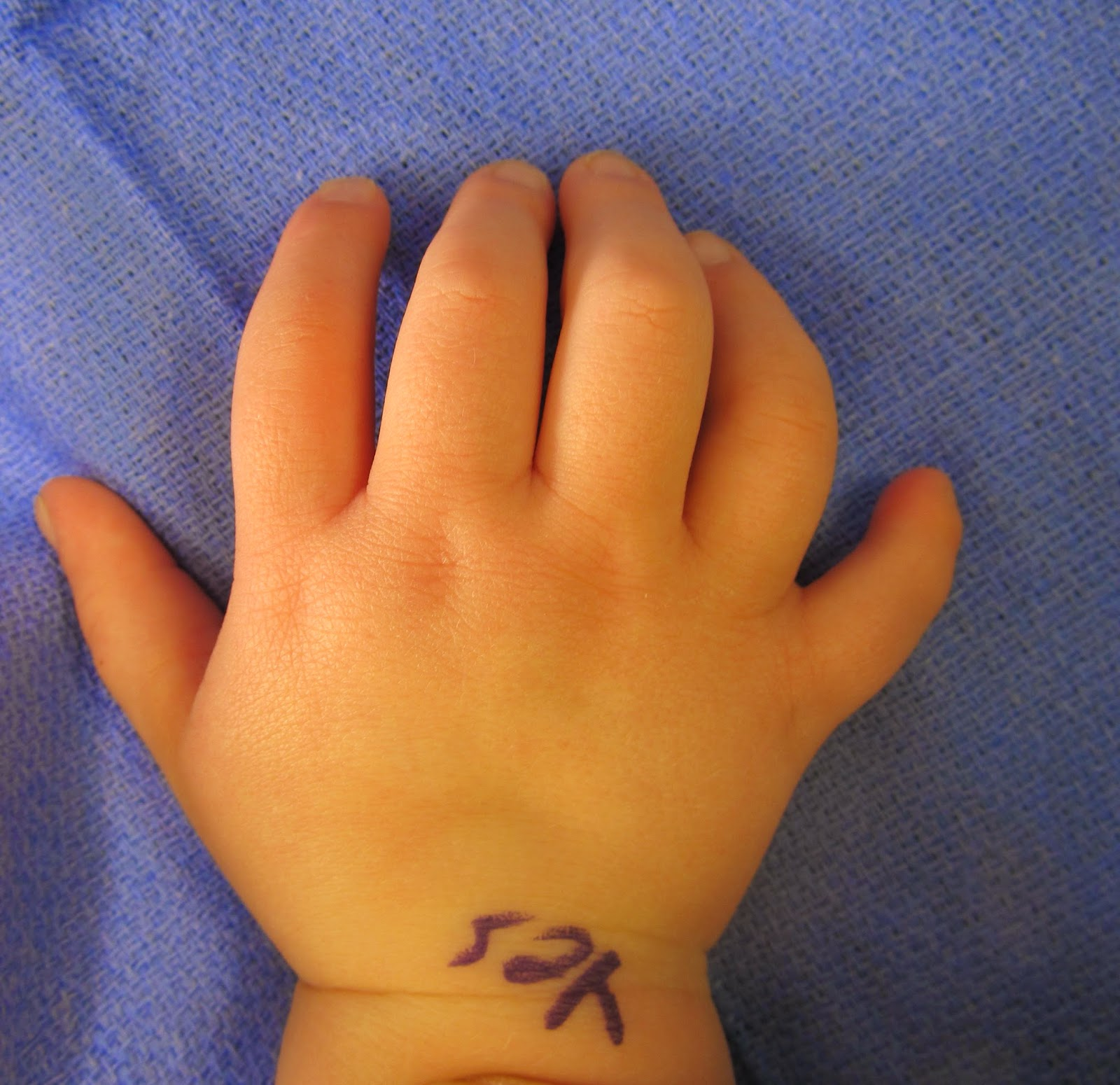 Extra Digits- What Happens After Treatment | Congenital Hand and Arm ...