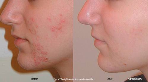 Birth Control Acne Before and After