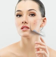 Cara Ampuh dan Mudah Menghilangkan Jerawat di Wajah - Tips kesehatan pada wajah - Tips jitu menghilangkan jerawat