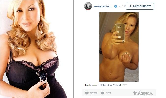 Anastacia: Ποζάρει στο instagram χωρίς μακιγιάζ – Σώθηκε από τον καρκίνο κάνοντας διπλή μαστεκτομή