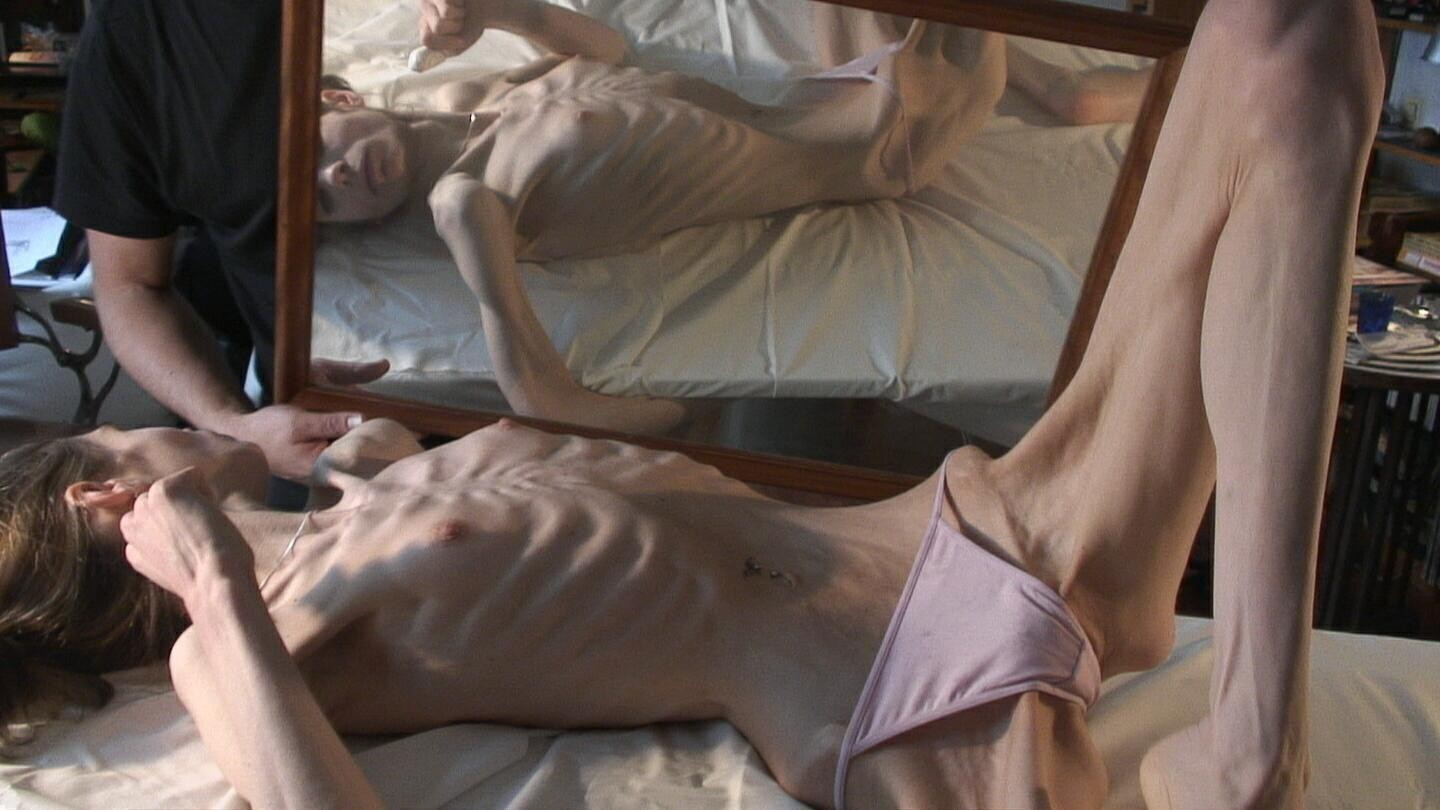 Anorexic nudes porn gallery