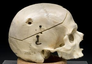 skull with gunshoot hole