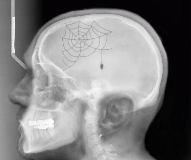 Risultati immagini per ragnatele nel cervello
