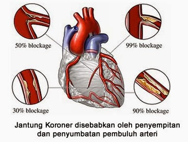 Solusi Pengobatan Penyakit Jantung Koroner Secara Alami