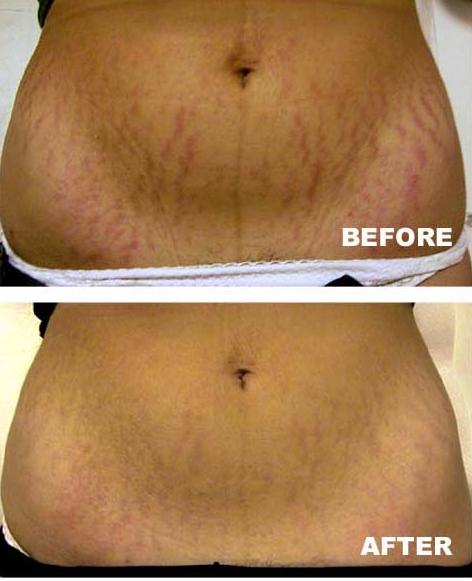 Natural Ways To Reduce Stretch Marks