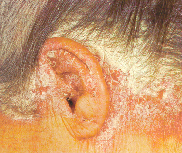 Dry Scalp - What Is the Difference Between Psoriasis and Dandruff 2