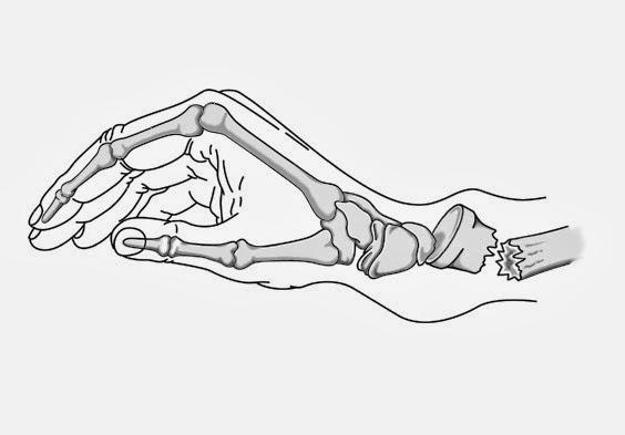 Protocolo de reabilitação para o tratamento cirúrgico da fratura de Colles