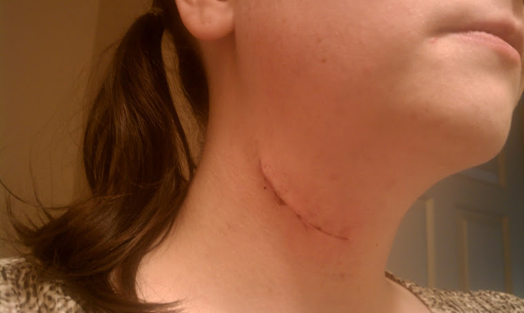 My incision 8 days post op.