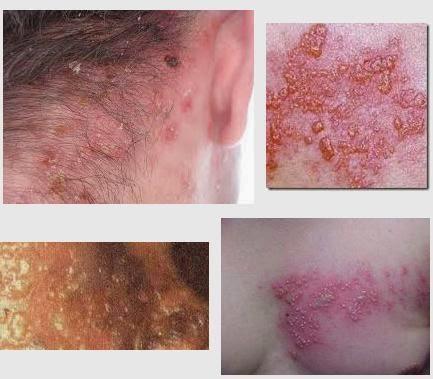 Penyakit Herpes Kulit