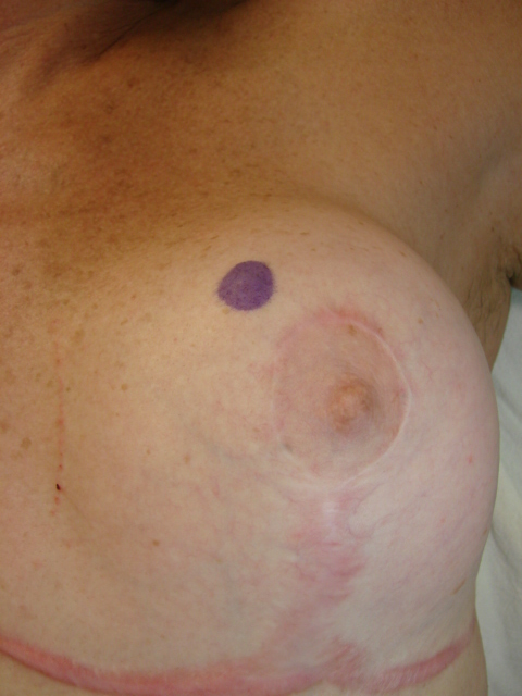 Breast Cancer Topic: Two lumps in the same breast